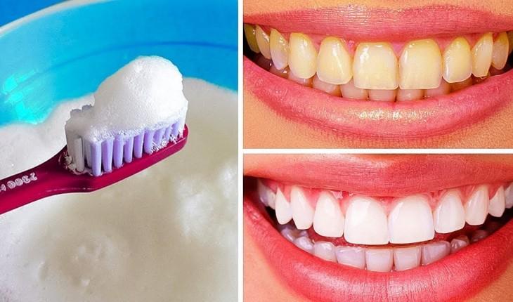 Aprenda 6 maneiras naturais de clarear os dentes e que realmente funcionam.