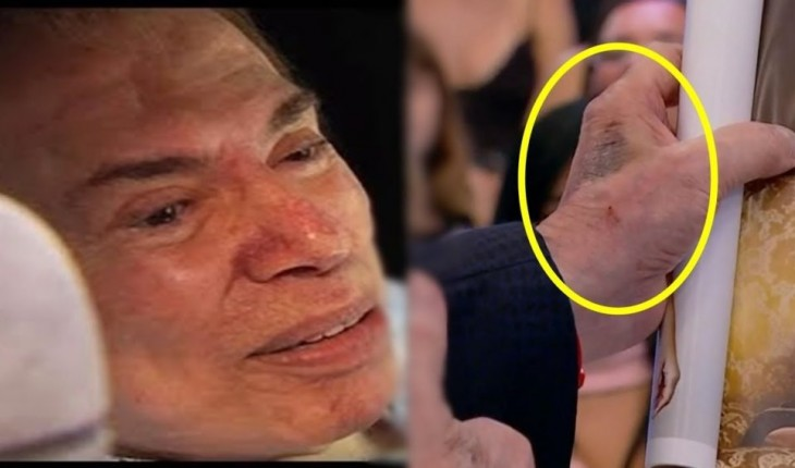 Doença grave? Silvio Santos desabafa sobre manchas estranhas no corpo e revela o que são.