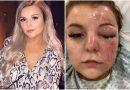 Mulher se cega ao cozinhar ovos no microondas: 'Os ovos explodiram na minha cara'
