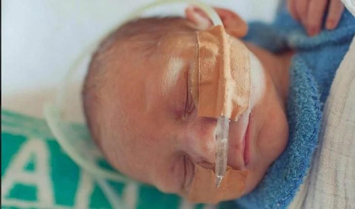 Alerta para as mamães: menino sofreu uma paralisia cerebral por erro comum na gestação.